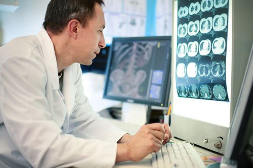 Doctor looking at scan to spot brain injury